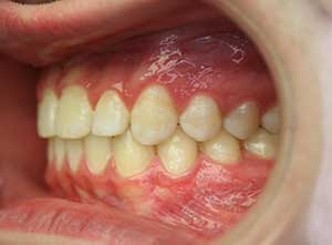 Surgical case one, third after picture.  Intra-oral camera photo on the left side of the teeth.