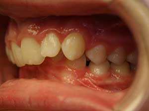 Surgical case one, third before picture.  Intra-oral camera photo on the left side of the teeth.